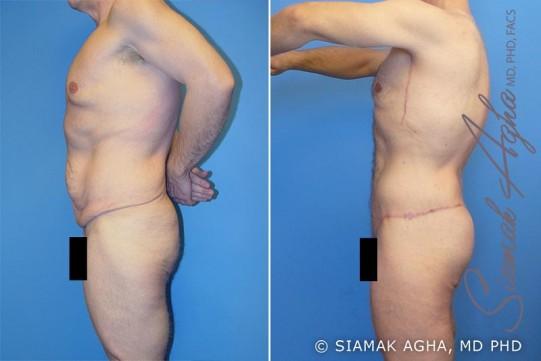 orange-county-total-body-lift-patient-5-left