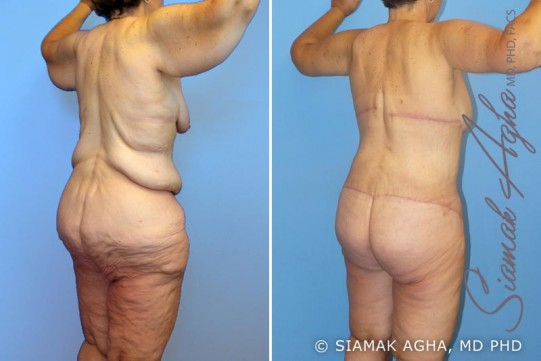 orange-county-total-body-lift-patient-7-back-right