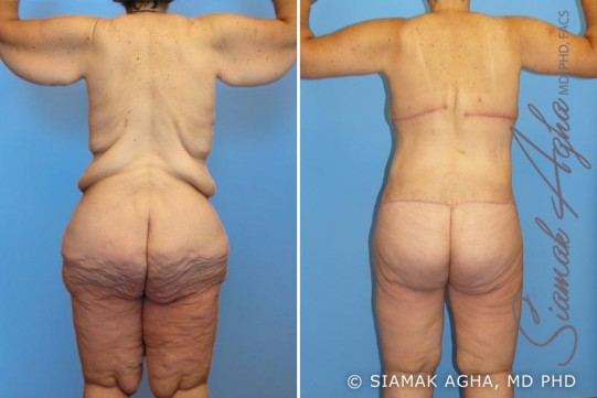 orange-county-total-body-lift-patient-7-back