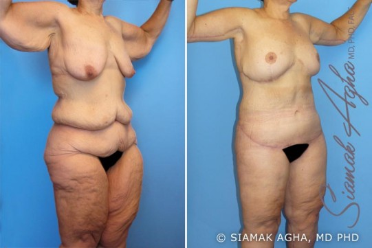 orange-county-total-body-lift-patient-7-front-right