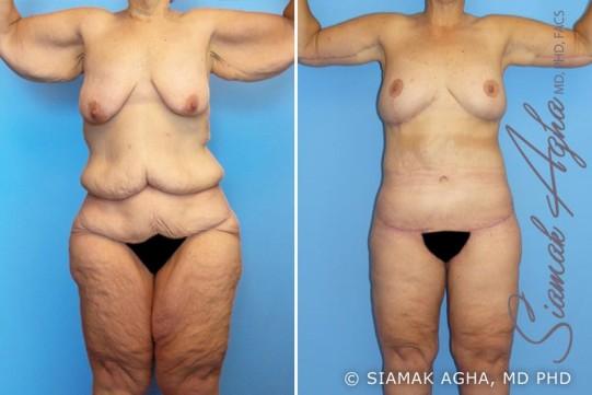 orange-county-total-body-lift-patient-7-front