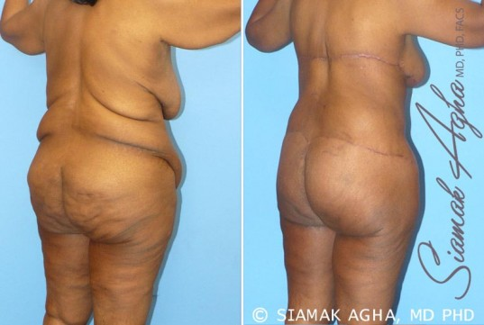orange-county-total-body-lift-patient-8-back-right