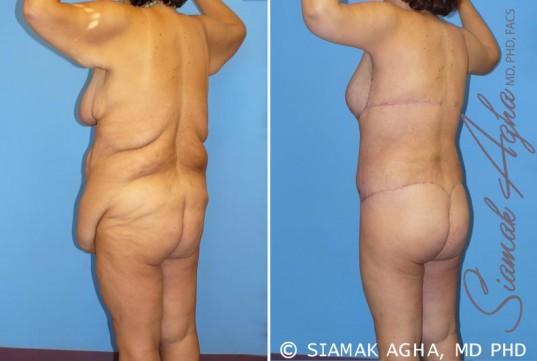 orange-county-total-body-lift-patient-9-back-left