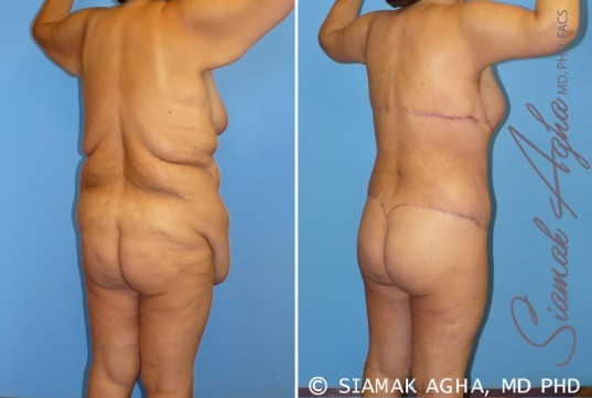 orange-county-total-body-lift-patient-9-back-right