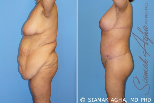 orange-county-total-body-lift-patient-9-left