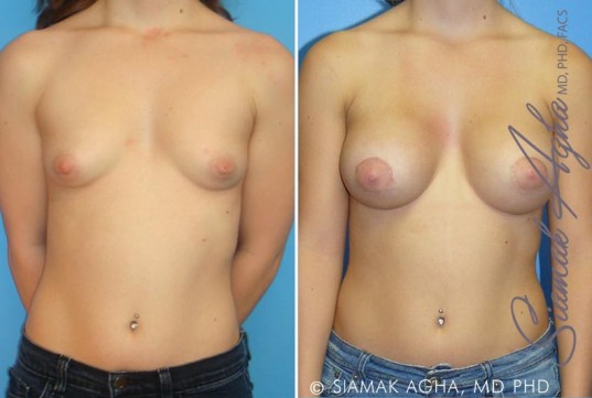 orange-county-tubular-breast-correction-patient-1-front (1)