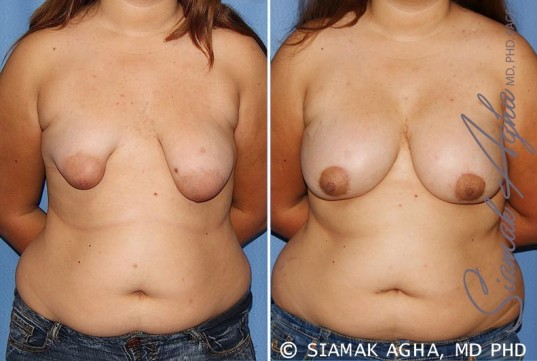 orange-county-tubular-breast-correction-patient-4-front