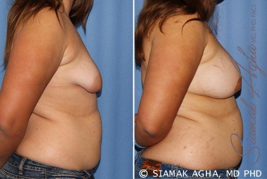 orange-county-tubular-breast-correction-patient-4-right
