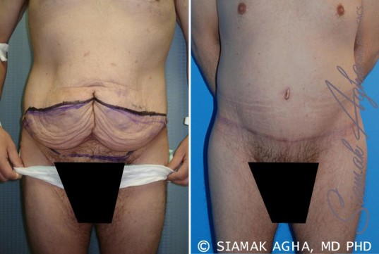 orange-county-tummy-tuck-patient-10-front