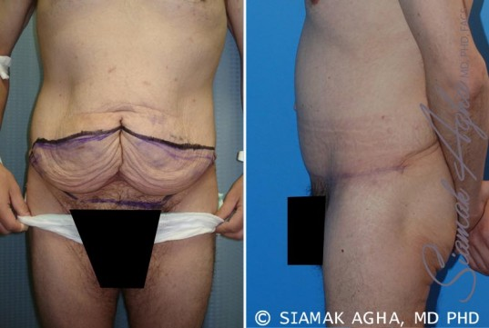 orange-county-tummy-tuck-patient-10-left