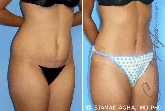 orange-county-tummy-tuck-patient-11-front-right