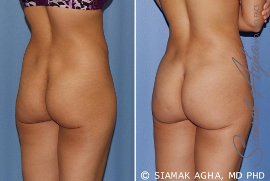 orange-county-tummy-tuck-patient-12-back-right