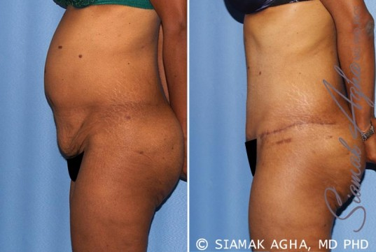 orange-county-tummy-tuck-patient-13-left