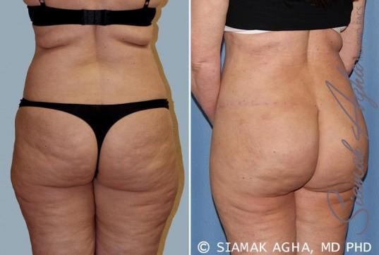 orange-county-tummy-tuck-patient-14-back-left