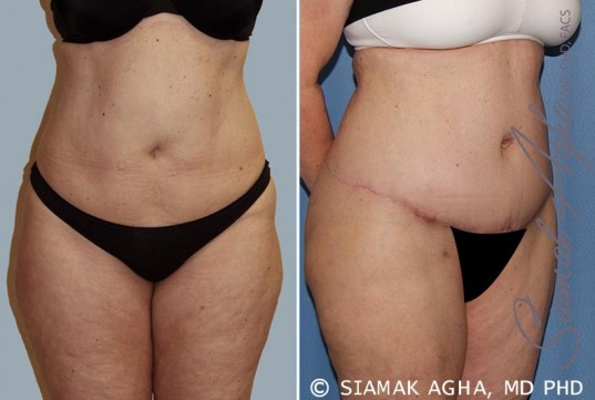 orange-county-tummy-tuck-patient-14-front-right