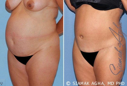 orange-county-tummy-tuck-patient-15-front-left