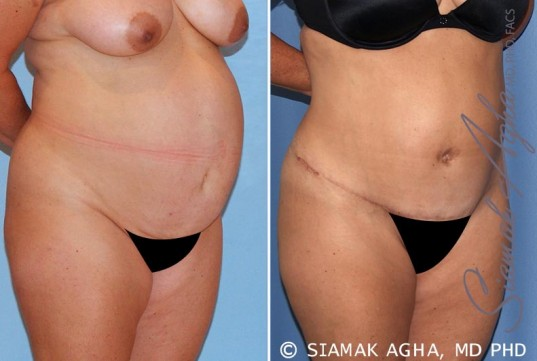 orange-county-tummy-tuck-patient-15-front-right