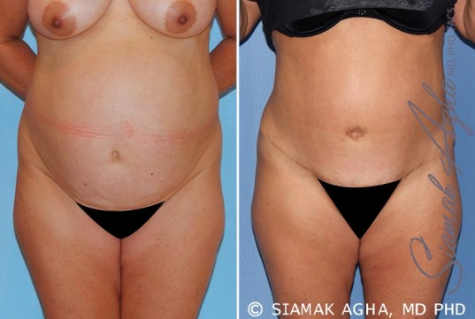orange-county-tummy-tuck-patient-15-front
