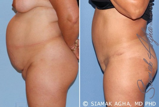 orange-county-tummy-tuck-patient-15-left