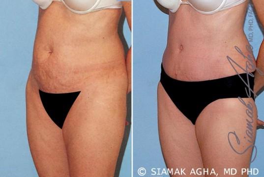 orange-county-tummy-tuck-patient-16-front-left