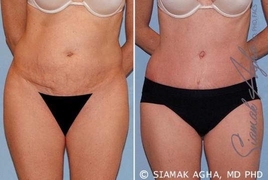 orange-county-tummy-tuck-patient-16-front