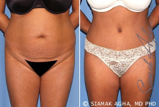 orange-county-tummy-tuck-patient-17-front-1