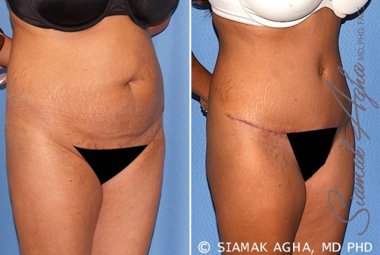 orange-county-tummy-tuck-patient-17-front-right