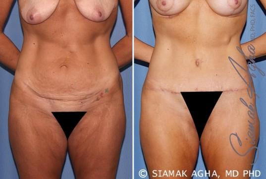 orange-county-tummy-tuck-patient-18-front