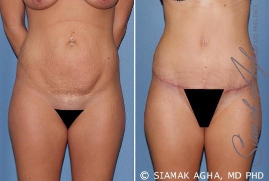 orange-county-tummy-tuck-patient-19-front