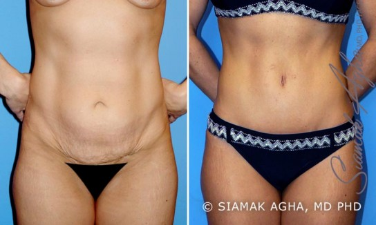 orange-county-tummy-tuck-patient-2-front