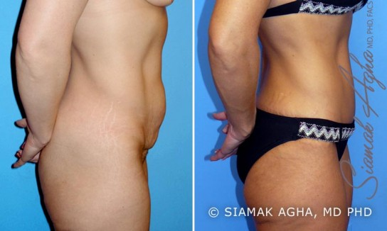 orange-county-tummy-tuck-patient-2-right