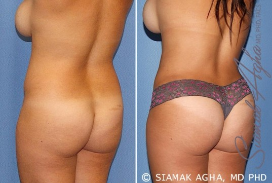 orange-county-tummy-tuck-patient-20-back-left