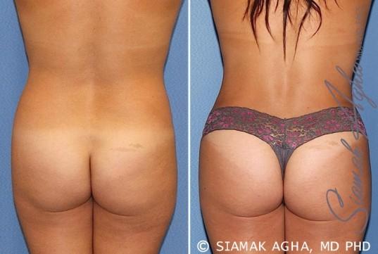 orange-county-tummy-tuck-patient-20-back