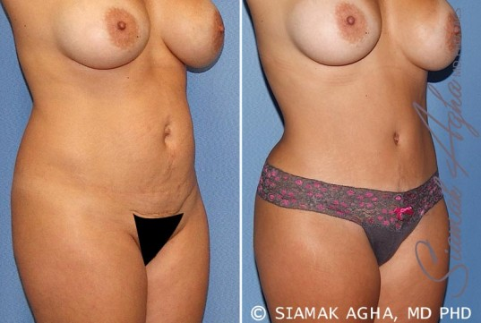 orange-county-tummy-tuck-patient-20-front-right