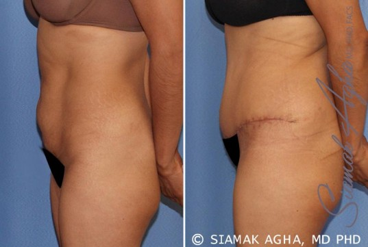 orange-county-tummy-tuck-patient-21-left