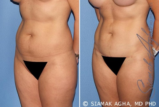 orange-county-tummy-tuck-patient-22-front-left