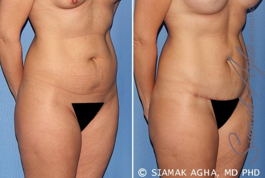 orange-county-tummy-tuck-patient-22-front-right
