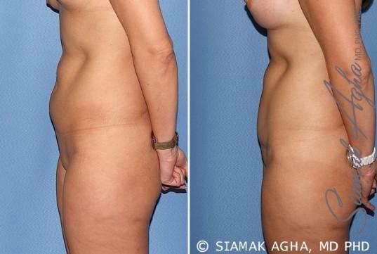 orange-county-tummy-tuck-patient-22-left