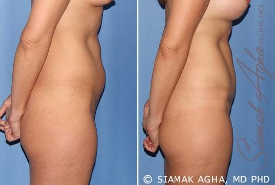 orange-county-tummy-tuck-patient-22-right