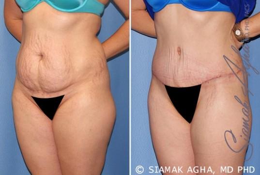 orange-county-tummy-tuck-patient-23-front-left