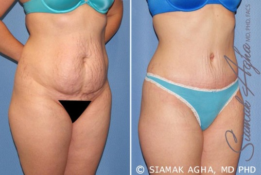orange-county-tummy-tuck-patient-23-front-right-2