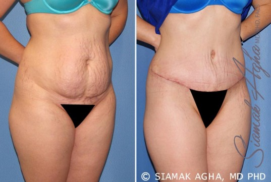 orange-county-tummy-tuck-patient-23-front-right