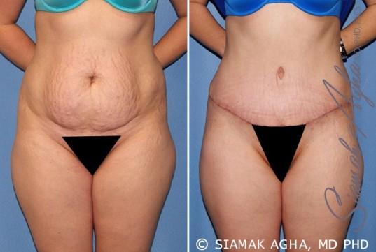 orange-county-tummy-tuck-patient-23-front