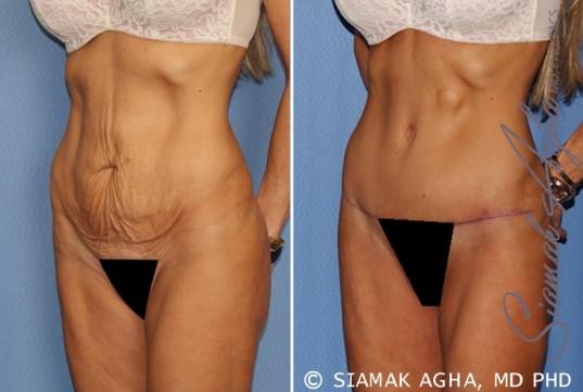 orange-county-tummy-tuck-patient-24-front-left