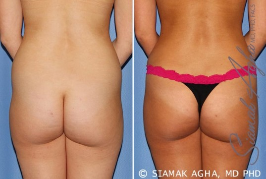 orange-county-tummy-tuck-patient-25-back