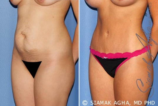 orange-county-tummy-tuck-patient-25-front-left