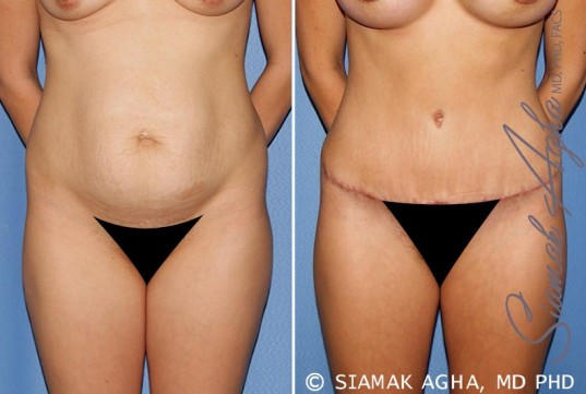 orange-county-tummy-tuck-patient-25-front