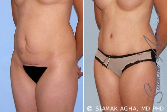 orange-county-tummy-tuck-patient-26-front-left