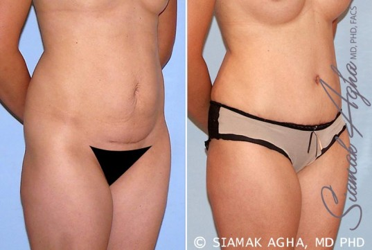 orange-county-tummy-tuck-patient-26-front-right