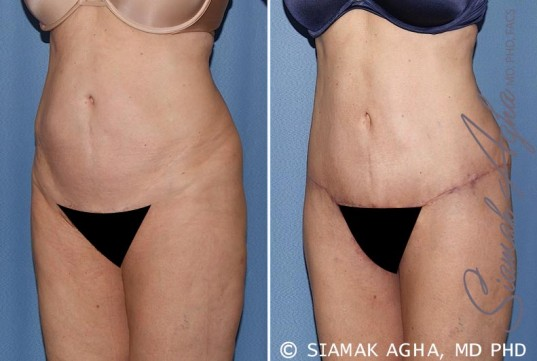 orange-county-tummy-tuck-patient-27-front-left
